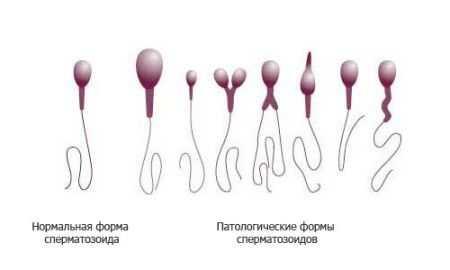Тератозооспермия