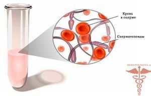 почему красные сгустки в сперме