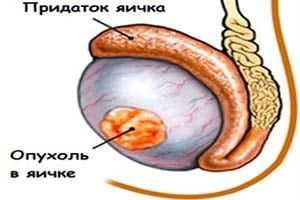 уплотнение на яйце
