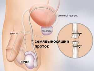 как проводят стерилизацию
