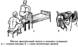 массаж простаты в домашних условиях