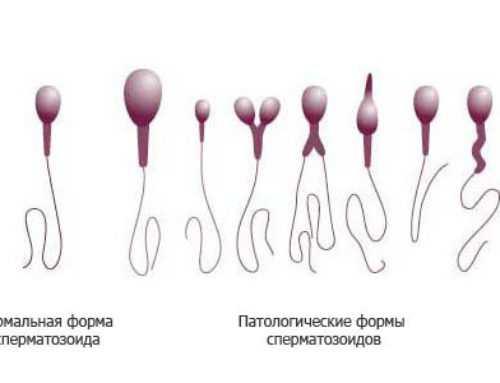 Патоспермия (патологическая сперма) — причины и лечение