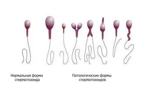 патоспермия