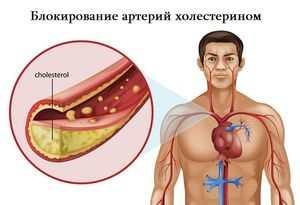 холестерин в крови мужчин