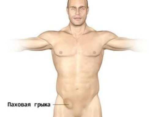 Грыжа в паху у мужчин — симптомы, лечение, как проходит операция