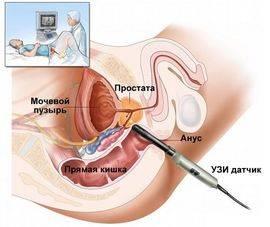 Сколько живут без лечения рака предстательной железы